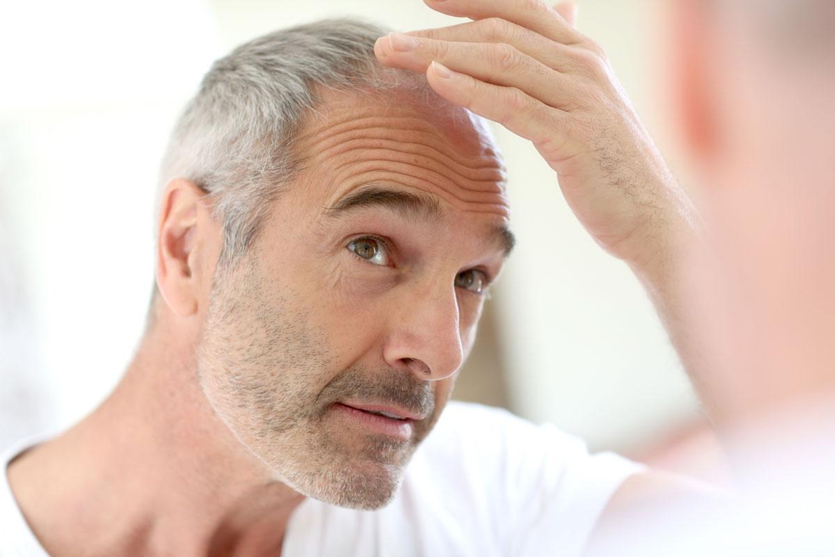 Bild eines Mannes mit schütterem Haar bzw. Haarausfall